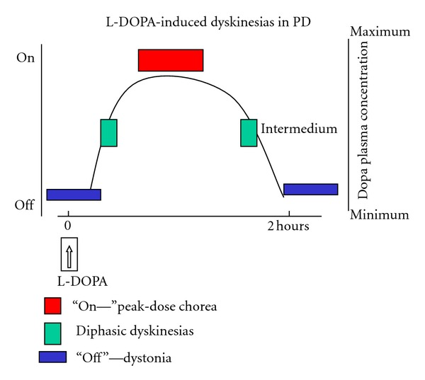 Levodopa-induced dyskinesias